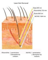 come agisce il laser alessandrite
