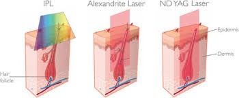 laser depilazione differenze